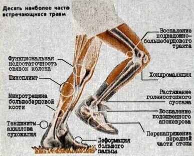 http://luganskorient.narod.ru/travma/TrBeg.files/image001.jpg